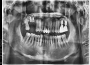 53세 남자 상악우측임플란트&뼈이식수술