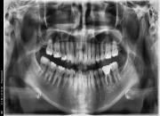 30대후반여성 / 왼쪽아래구치부 발치, 치조골이식, 임플란트식립