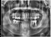 48세 남자환자 / 상악우측소구치 , 하악좌측 대구치및소구치 발치후 뼈이식 및 임플란트식립