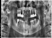 65세 남자환자 / 하악 전치및소구치 발치후 뼈이식및 식립