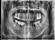 60세 남자환자 / 좌측상악 소구치뼈이식및임플란트식립