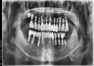 67세 남자환자/ 상하악 구치부 및 상악전치 뼈이식, 임플란트식립 (완성)