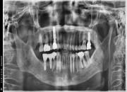 70세 여자환자 / 좌측 상하악 구치부 발치후 뼈이식및임플란트식립