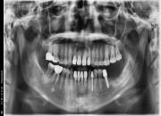 42세 여자환자 / 하악좌측 뼈이식 및 임플란트식립
