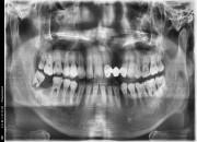 41세 남자 우측 사랑니 발치와 어금니 뼈이식& 임플란트식립