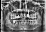 52세여자 하악구치부(타병원임플란트실패)후뼈이식후임플란트식립